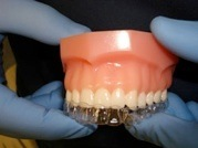 Invisible braces being positioned over teeth