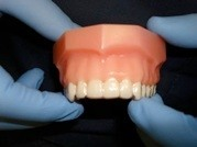 Invisible braces in place over teeth