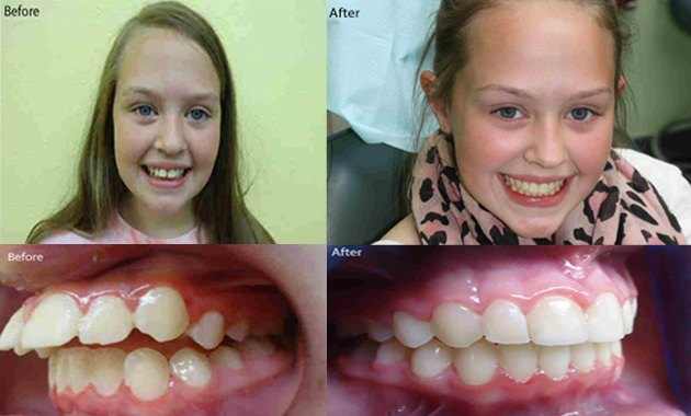 A young girl photographed before and after her Fastbraces treatment.