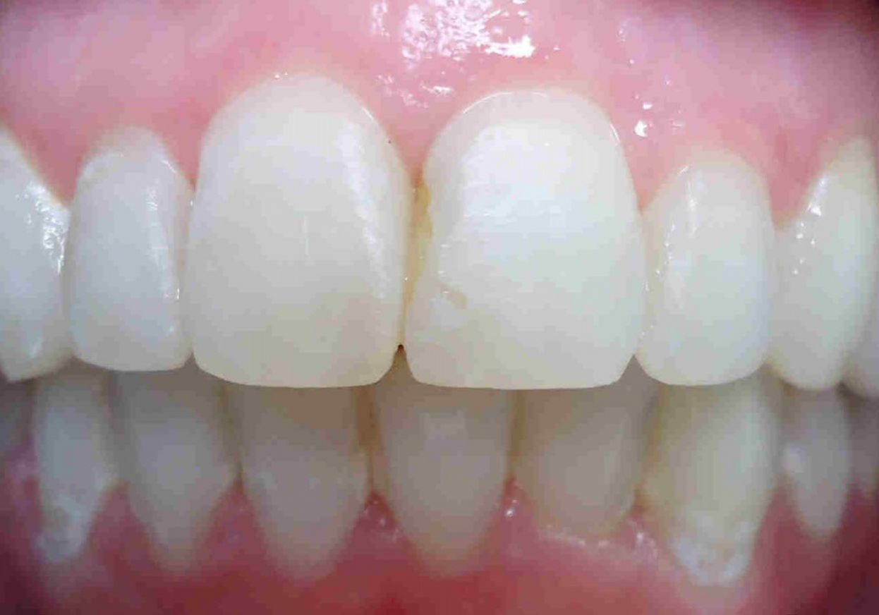 Jen U front teeth after copy cropped